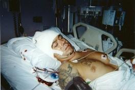 MI in hospital